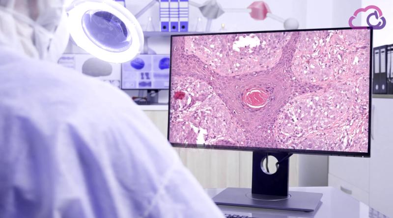 El CVBLab-UPV lidera un proyecto europeo sobre patología digital